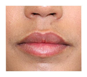 brickell lip fillers after