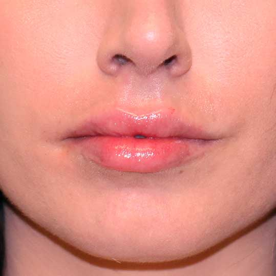 Lip Fillers Brickell